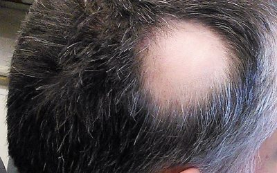 7 claves para saber qué es la alopecia areata