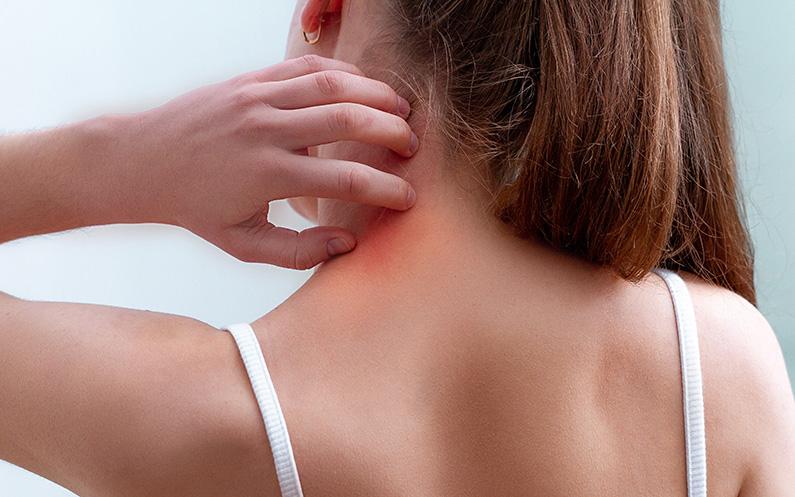 ¿Qué es la psoriasis del cuero cabelludo y cómo se puede tratar?