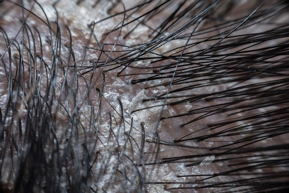 Psoriasis leve del cuero cabelludo