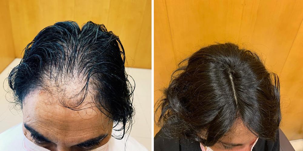 Alopecia androgenética femenina: Antes y después