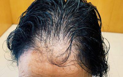 Alopecia androgenética femenina: causas y soluciones