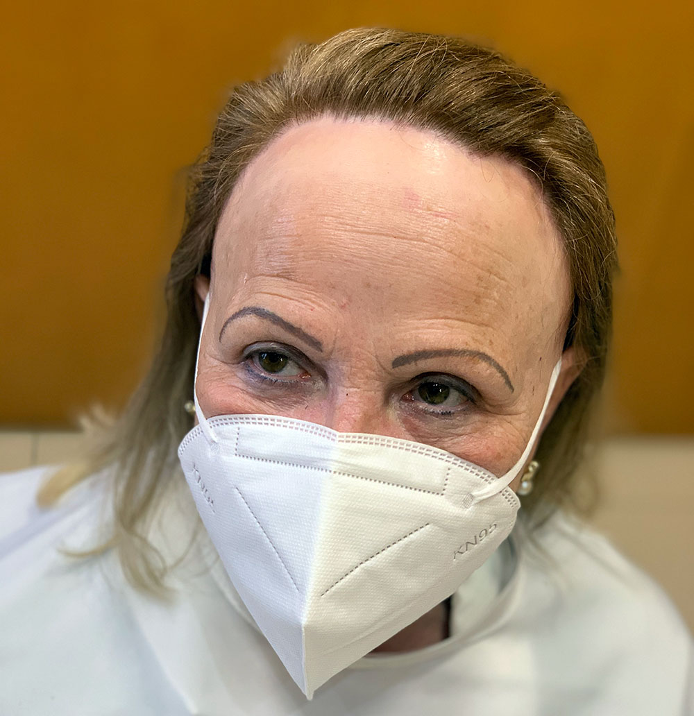 Ejemplo de alopecia frontal fibrosante