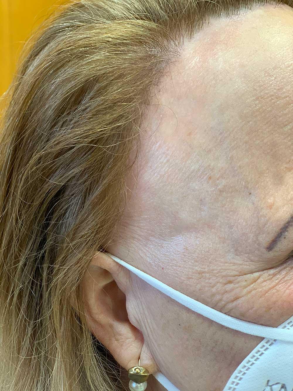 Alopecia frontel fibrosante