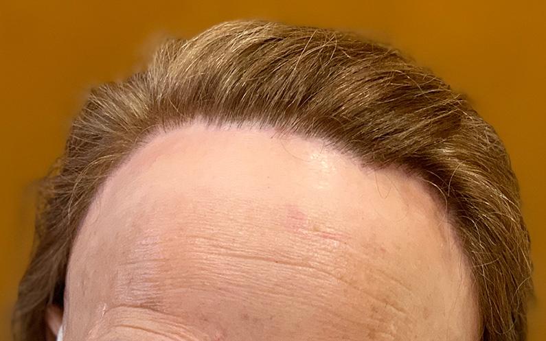 ¿Qué es la alopecia frontal fibrosante? Conoce nuestro caso de éxito