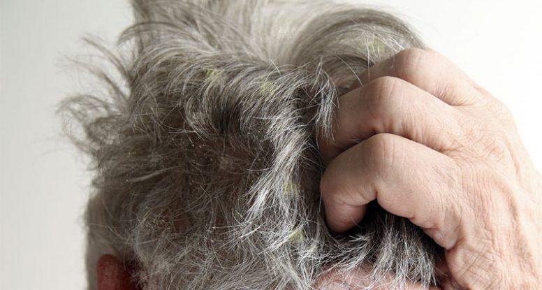 Dermatitis seborreica en el cuero cabelludo, causas y cuidado
