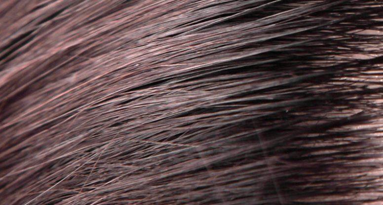 El cuero cabelludo graso y la seborrea